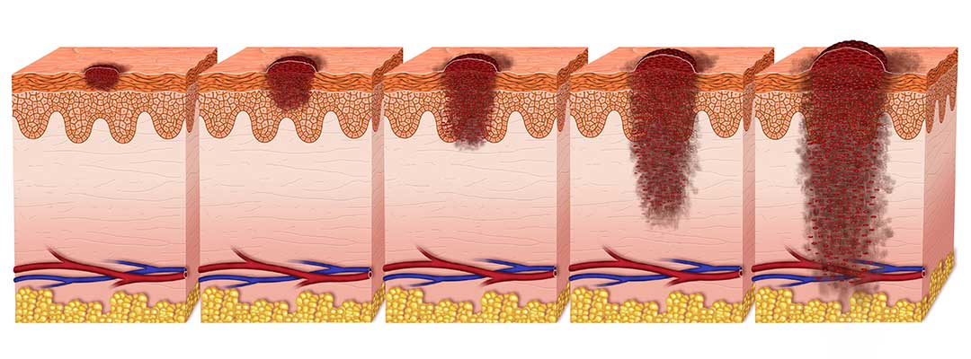 Schwarzer Hautkrebs - Melanome in der Haut