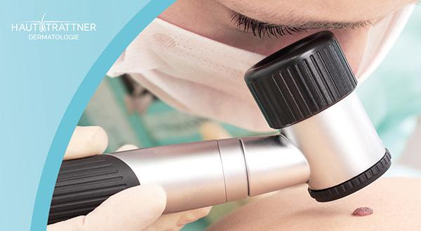 Haut Trattner Behandlung Dermatoskopie