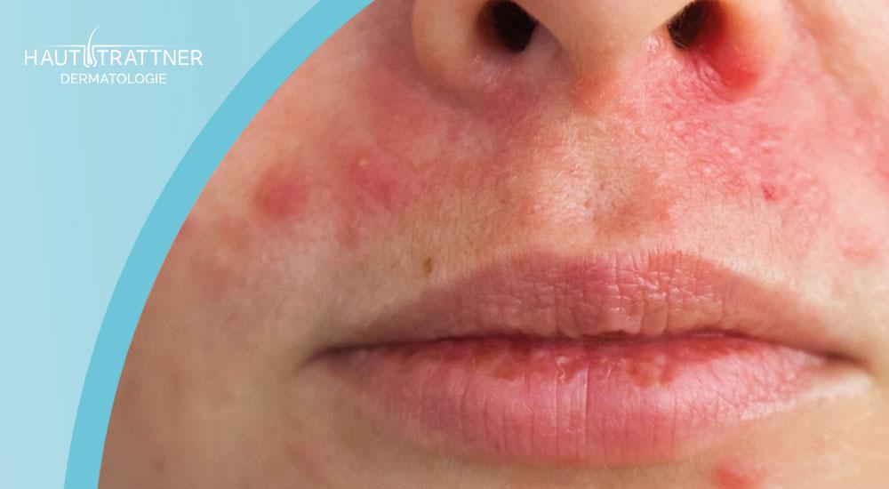 Haut Trattner Behandlung Erkrankung Periorale Dermatitis