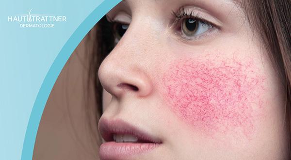 Haut Trattner Behandlung Erkrankung Rosazea