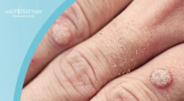 Haut Trattner Behandlung Erkrankung Warzen