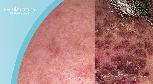 Haut Trattner Behandlung Feldtherapie