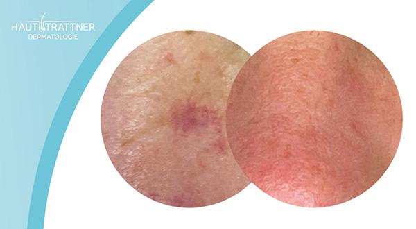 Haut-Trattner-Behandlung-Hauterkrankung-Alma-Laser