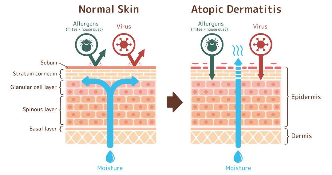 Haut Trattner - Neurodermitis Entstehung