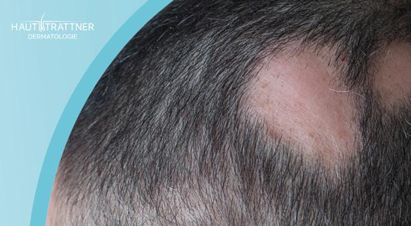 Erkrankung Haarausfall