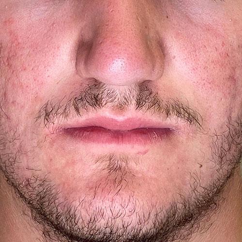 Befund nach 10 Monaten Isotretinoin Einnahme