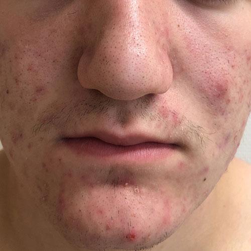 Ausgeprägte Akne im Gesichtsbereich