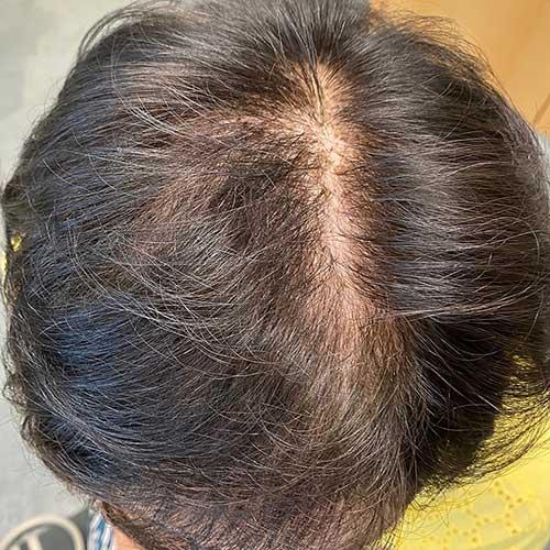 Behandlung mit Minoxidil nach 6 Monaten