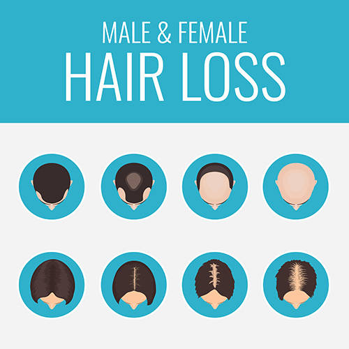 Erblicher Haarausfall Beispiele