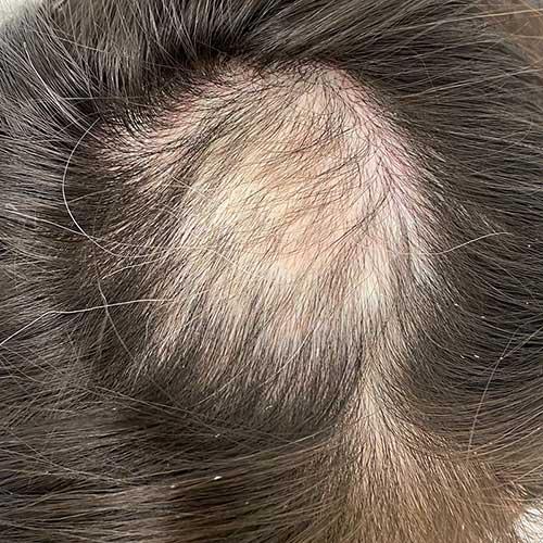 Hauterkrankung - Kreisrunder Haarausfall Nachwachsen ohne Behandlung