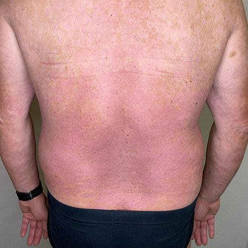 Psoriasis Behandlungserfolg mit Biologika Woche 4