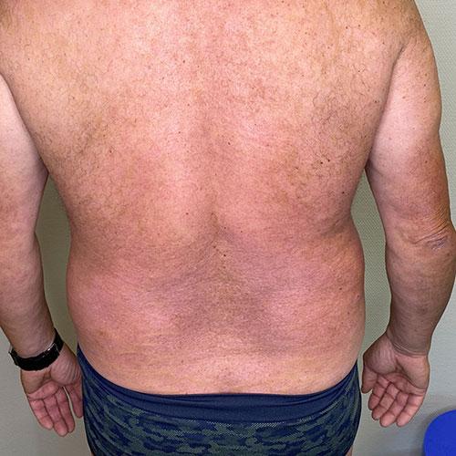 Psoriasis Behandlungserfolg mit Biologika Woche 16