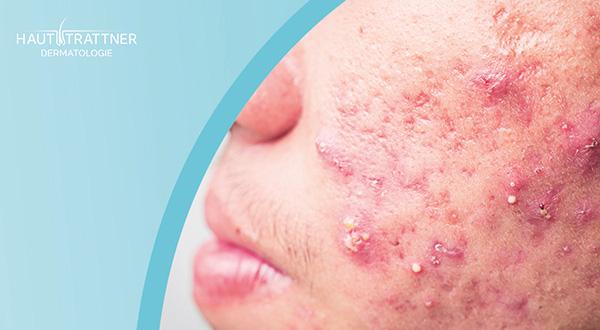 Hautarzt-Wien-Hainfeld-Trattner-Erkrankung-Akne-Behandlung